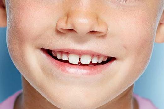 implantes dentales infantiles